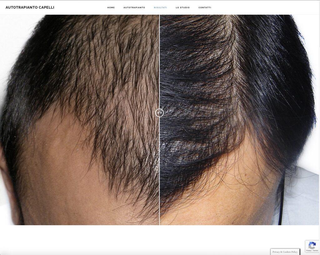 auto-trapianto-capelli-milano